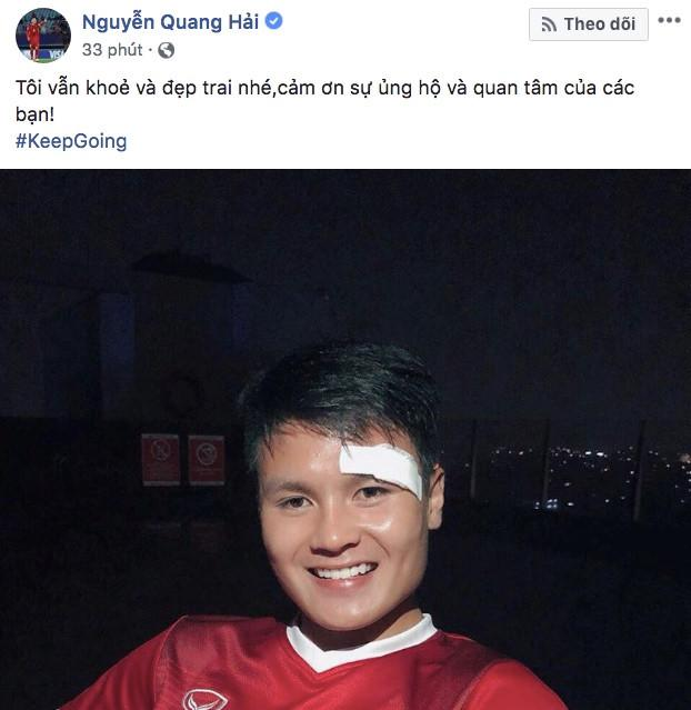 Máu chảy ròng ròng trên mắt, Quang Hải U23 an ủi người hâm mộ siêu lầy: Tôi vẫn khỏe và đẹp trai nhé-1