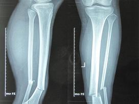 Tưởng con ngã gãy chân đơn giản, cha mẹ chết lặng khi bác sĩ nói con bị ung thư xương