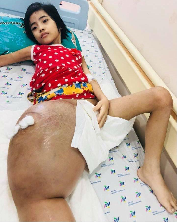 Tưởng con ngã gãy chân đơn giản, cha mẹ chết lặng khi bác sĩ nói con bị ung thư xương-1