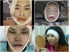 Những hình ảnh vẽ tạo hình, băng bó chằng chịt của sao Việt trên bàn phẫu thuật thẩm mỹ khiến người ta giật mình