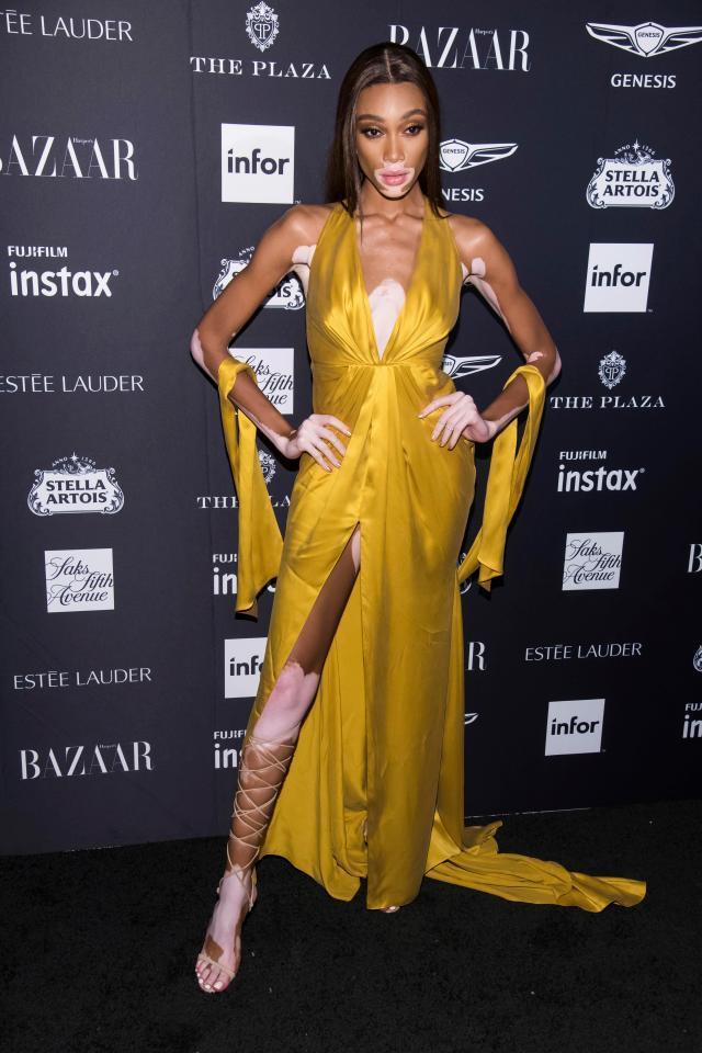 Bella Hadid mặc quá táo bạo, Christina Aguilera thành thảm họa-11