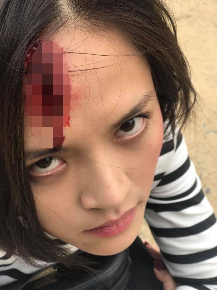 Lộ clip My Sói bị đánh dã man đến vỡ đầu chảy máu trong Quỳnh Búp Bê-4