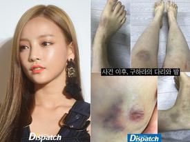 'Búp bê xứ Hàn' Goo Hara tung bằng chứng bị bạn trai đánh bầm dập vùng kín