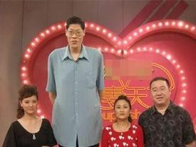 Căn bệnh 'quái' khiến người đàn ông cao 2m42 lấy vợ 19 năm không có con