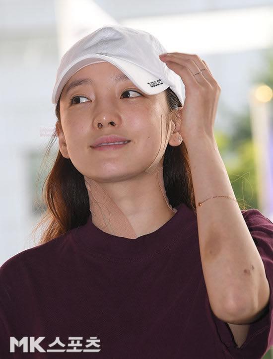 Búp bê xứ Hàn Goo Hara xuất hiện với khuôn mặt đầy thương tích, tay tím bầm vì bị bạn trai bạo hành-3