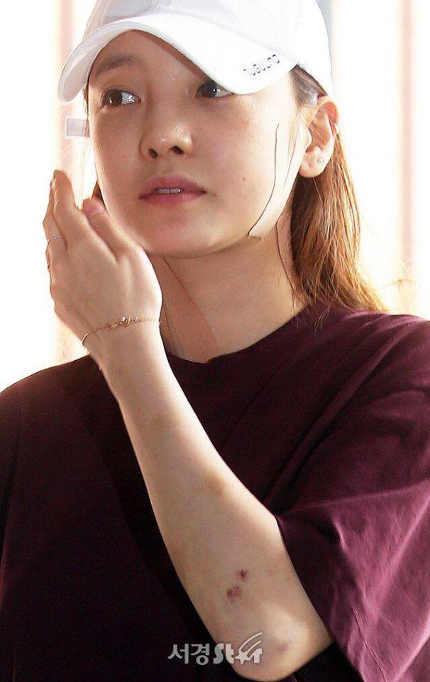 Búp bê xứ Hàn Goo Hara xuất hiện với khuôn mặt đầy thương tích, tay tím bầm vì bị bạn trai bạo hành-9