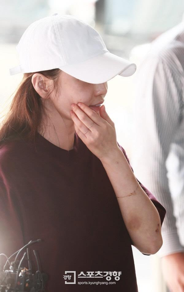 Búp bê xứ Hàn Goo Hara xuất hiện với khuôn mặt đầy thương tích, tay tím bầm vì bị bạn trai bạo hành-10