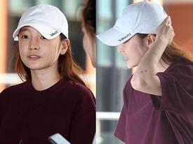 'Búp bê xứ Hàn' Goo Hara xuất hiện với khuôn mặt đầy thương tích, tay tím bầm vì bị bạn trai bạo hành