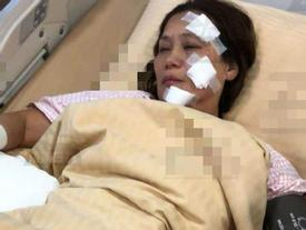 'Nữ hoàng kungfu' bị bỏng nặng vì hỏa hoạn trên trường quay