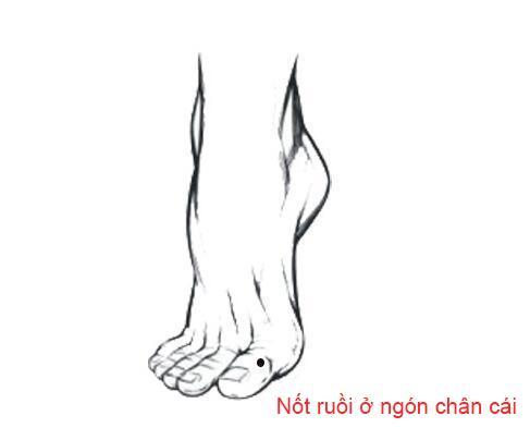 Nốt ruồi trên bàn chân nói lên điều gì?-2