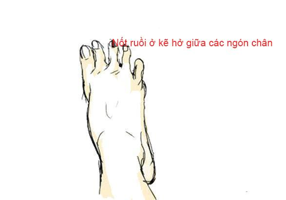 Nốt ruồi trên bàn chân nói lên điều gì?-4