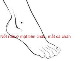 Nốt ruồi trên bàn chân nói lên điều gì?