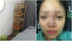 Nữ sinh bị mù mắt khi tiêm filler: Dấu hiệu đáng ngờ bên trong spa