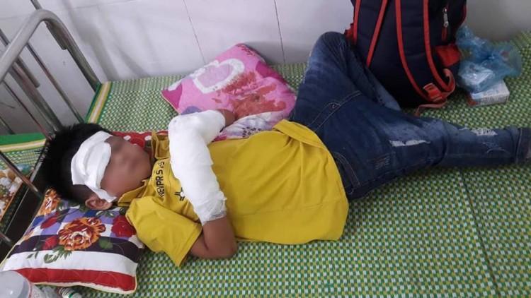 Bé trai dập nát 2 bàn tay vì điện thoại phát nổ-1