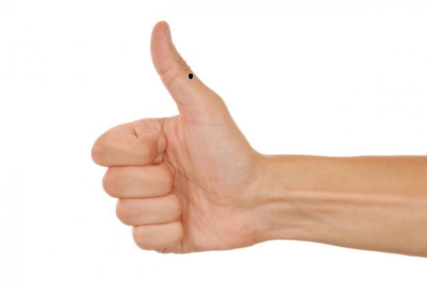 Trên bàn tay mà có 1 trong 3 nốt ruồi này, bạn chắc chắn sẽ là người giàu sang hết phần người khác-1