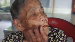 Hà Tĩnh:  Xôn xao câu chuyện cụ bà 98 tuổi mọc răng