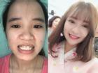 'Xinh như mộng' sau thẩm mỹ, cô gái Quảng Nam dám tỏ tình với crush