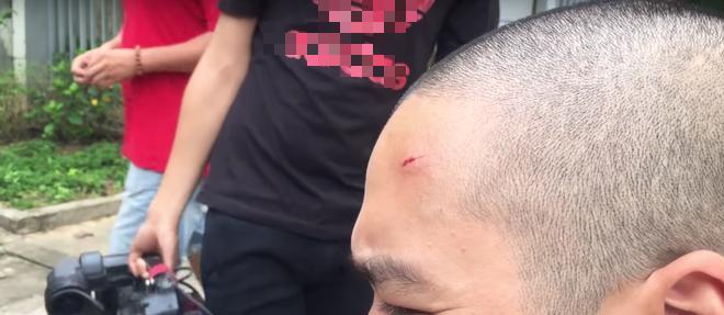 Tai nạn trên phim trường Quỳnh Búp Bê: Thái tử Thiên Thai bắn nhầm quay phim-4