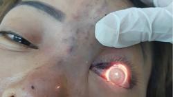 TPHCM: Phạt 120 triệu đồng cơ sở spa tiêm filler nâng mũi khiến bệnh nhân mù mắt