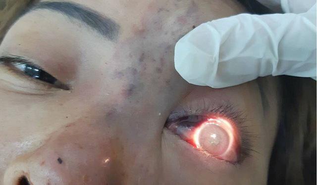 TPHCM: Phạt 120 triệu đồng cơ sở spa tiêm filler nâng mũi khiến bệnh nhân mù mắt-1