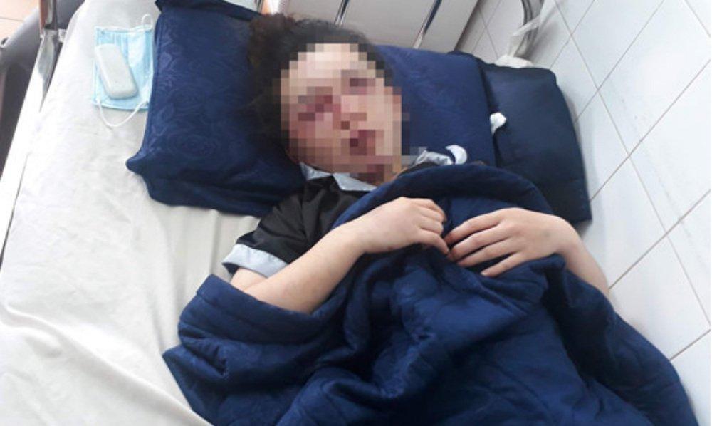 Gia Lai: Nữ nhân viên tiệm spa bị 6 người đánh đập đến nhập viện-1
