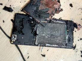 Điện thoại nổ lúc sạc pin, thanh niên bị dập nát bàn tay