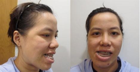Cô giáo dạy thanh nhạc lột xác sau 27 năm chịu đắng cay vì mang gương mặt xấu ma chê quỷ hờn-1
