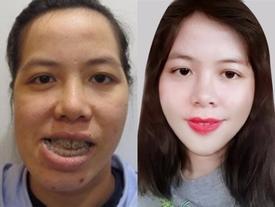 Cô giáo dạy thanh nhạc 'lột xác' sau 27 năm chịu đắng cay vì mang gương mặt xấu 'ma chê quỷ hờn'