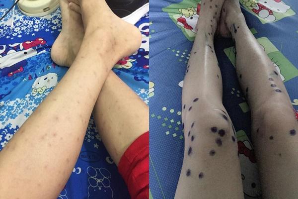 Bài học xương máu mà cháu ngoại quốc dân Nguyễn Ngọc Phú trước khi mất muốn gửi các bạn trẻ-2