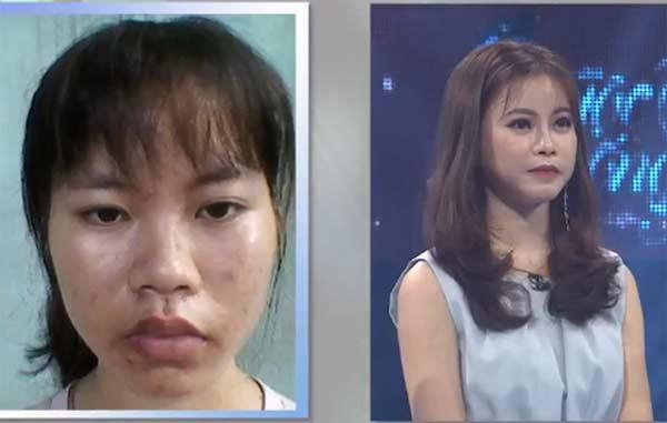 Cô sinh viên y khoa xấu xí trở nên xinh đẹp khiến mẹ không nhận ra-1