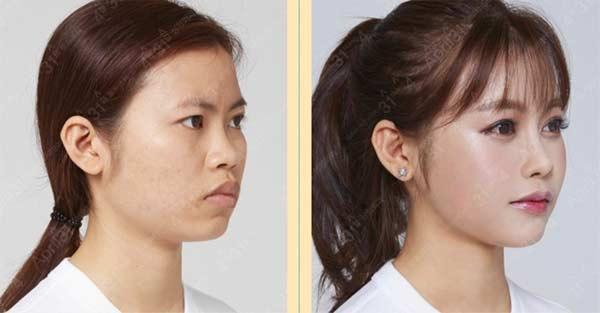 Cô sinh viên y khoa xấu xí trở nên xinh đẹp khiến mẹ không nhận ra-2