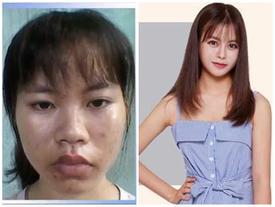 Cô sinh viên y khoa xấu xí trở nên xinh đẹp khiến mẹ không nhận ra