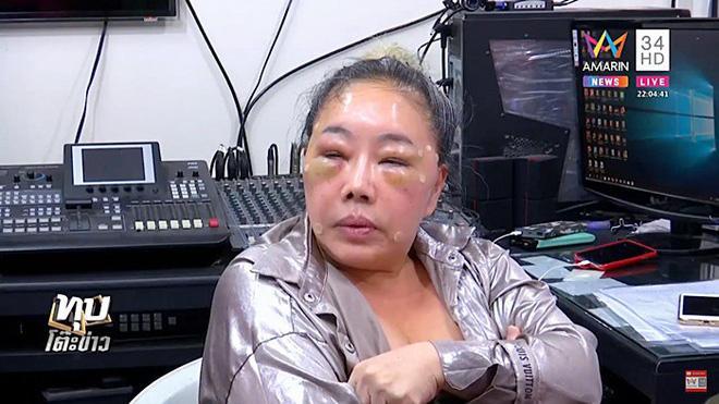 Nữ đại gia U60 tuyển chồng có khả năng yêu 28 lần/ngày gây shock với gương mặt biến dạng-4