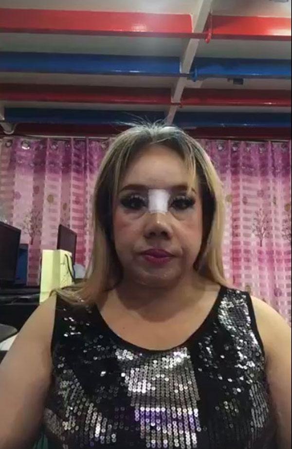 Nữ đại gia U60 tuyển chồng có khả năng yêu 28 lần/ngày gây shock với gương mặt biến dạng-5