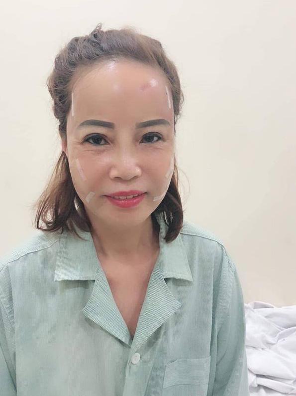 Chưa kịp hồi phục sau thẩm mỹ đã đi làm tóc, cô dâu 61 tuổi khiến chồng trẻ xuýt xoa: Vợ mình đẹp quá-1