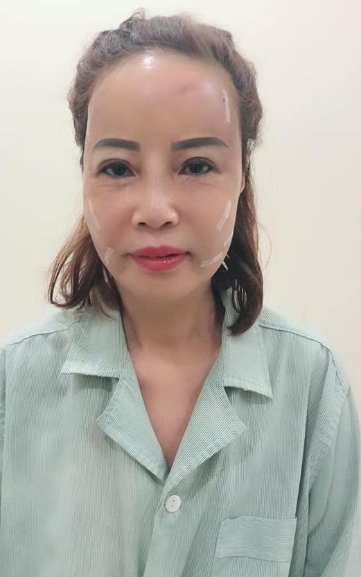 Chưa kịp hồi phục sau thẩm mỹ đã đi làm tóc, cô dâu 61 tuổi khiến chồng trẻ xuýt xoa: Vợ mình đẹp quá-2