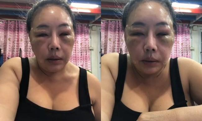 Từng gây xôn xao với mặt sưng phù nghi bị đánh, nữ đại gia U60 có khả năng yêu 28 lần/ngày tái xuất với nhan sắc như hoa hậu?-1