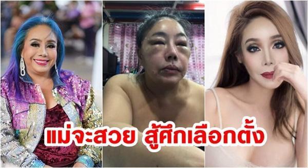 Từng gây xôn xao với mặt sưng phù nghi bị đánh, nữ đại gia U60 có khả năng yêu 28 lần/ngày tái xuất với nhan sắc như hoa hậu?-2