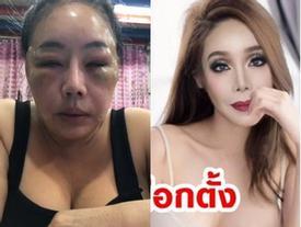 Từng gây xôn xao với mặt sưng phù nghi bị đánh, nữ đại gia U60 có khả năng 'yêu' 28 lần/ngày tái xuất với nhan sắc như hoa hậu?