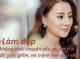 Phương Oanh 'Quỳnh Búp Bê': 'Tôi không giấu chuyện phẫu thuật thẩm mỹ'