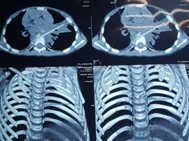 Bé trai bị que xiên thịt đâm xuyên phổi và đốt sống 9 tháng không biết