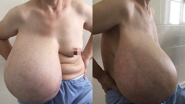 Người phụ nữ lệch người vì ngực dài quá rốn, nặng kỷ lục 9kg-1