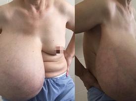Người phụ nữ lệch người vì ngực dài quá rốn, nặng kỷ lục 9kg