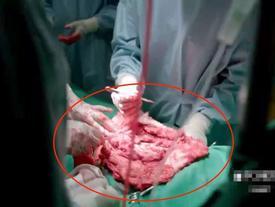 Hài hước cảnh dùng thịt bò để phẫu thuật trong 'Hậu duệ mặt trời' bản Việt
