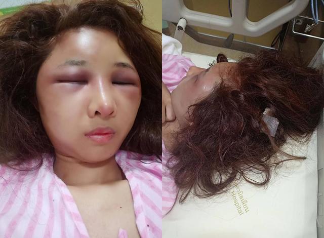 Vợ xinh đẹp bị chồng đánh biến dạng gương mặt chỉ vì để người yêu cũ đưa về nhà khi say rượu-3