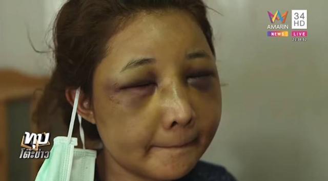 Vợ xinh đẹp bị chồng đánh biến dạng gương mặt chỉ vì để người yêu cũ đưa về nhà khi say rượu-4