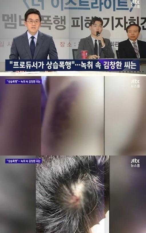 Dư luận Hàn Quốc phẫn nộ khi nhóm nhạc nhỏ tuổi bị đánh đập, bạo hành-2