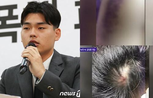 Nhóm nhạc Kpop đâm đơn kiện nhà sản xuất vì tội bạo hành-1
