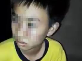 Bé trai bị bố đánh thâm tím, bỏ nhà đi lang thang