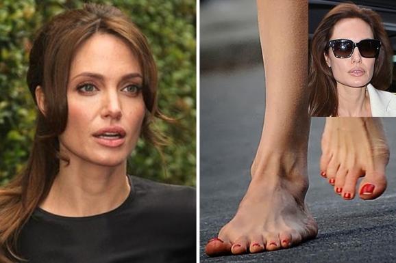 Đâu chỉ có Minh Hằng hay Ngọc Trinh, dàn mỹ nhân thế giới còn sở hữu đôi chân XẤU DỊ gấp nghìn lần-10